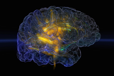 Glass Brain